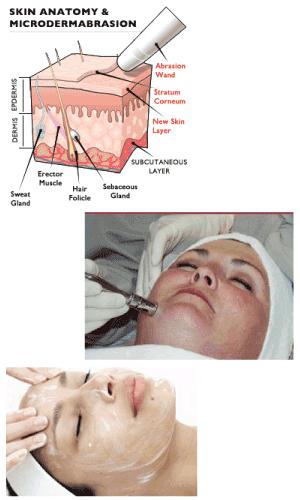 Microdermabrasion & Peels - Marlene J. Mash, MD
